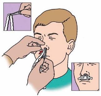 burun-kanamasi-tedavisi